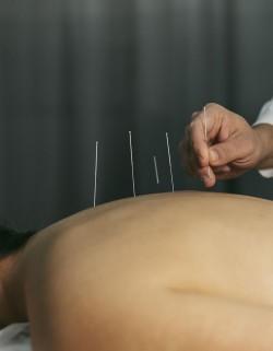 especialista en acupuntura